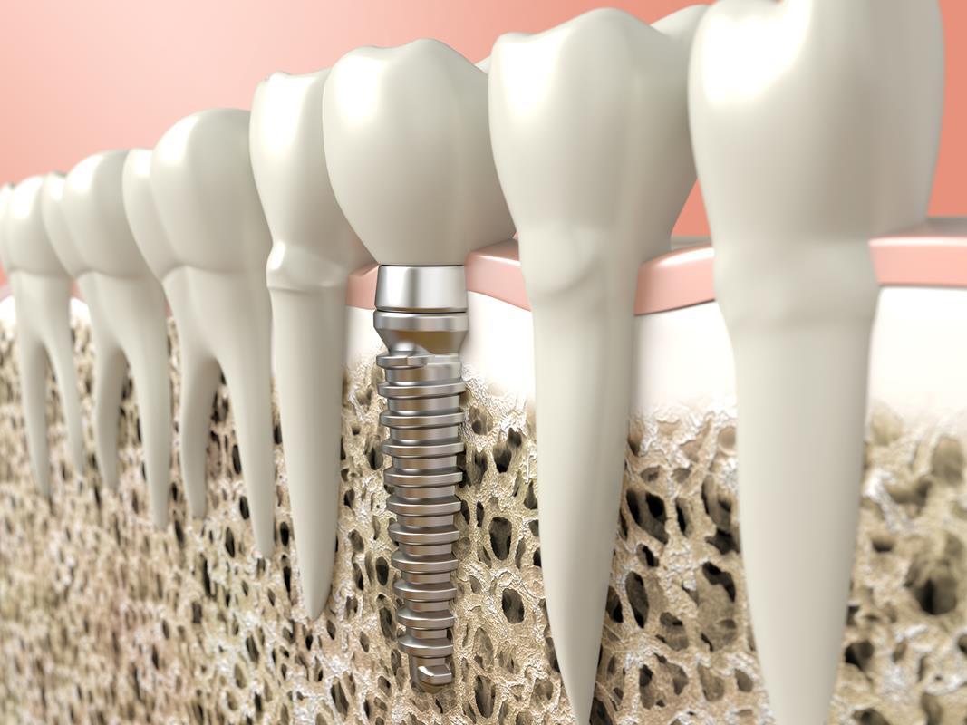 Dental Implants 359 Keller Parkway  Keller, <br/>TX 76248  United States