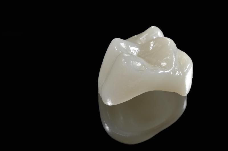 Porcelain Crowns 359 Keller Parkway  Keller, <br/>TX 76248  United States