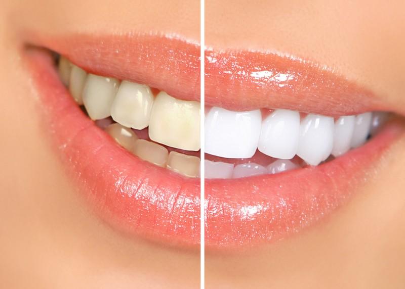 Teeth Whitening 359 Keller Parkway  Keller, <br/>TX 76248  United States